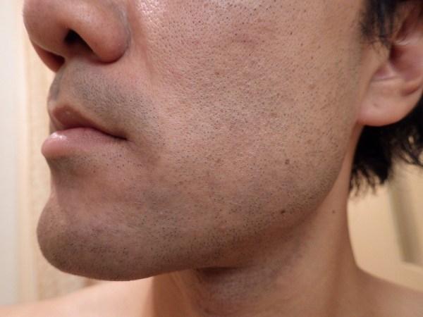 医療レーザーヒゲ脱毛後のほほの様子:赤み・炎症は?