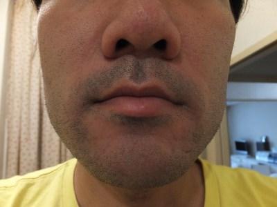 ヒゲ脱毛0回目体験前の鼻下写真
