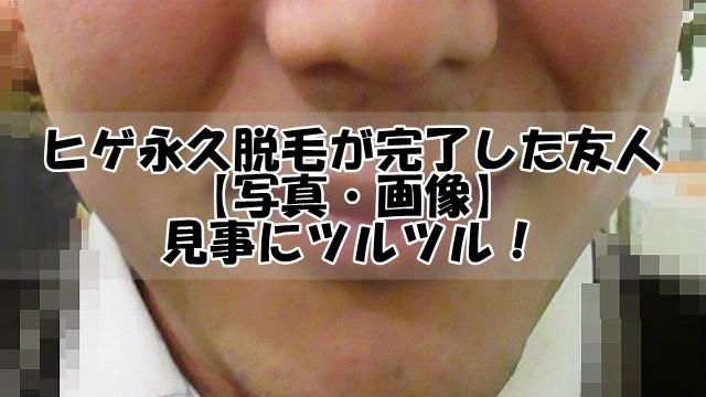 ヒゲ永久脱毛が完了した友人【写真・画像】見事にツルツル!