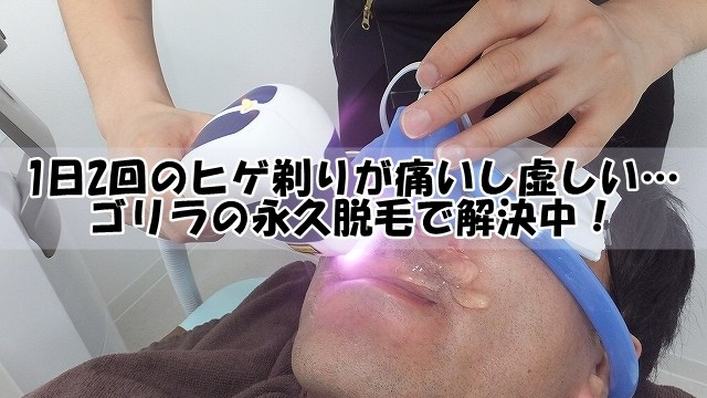 1日2回のヒゲ剃りが痛いし虚しい…ゴリラの永久脱毛で解決中!