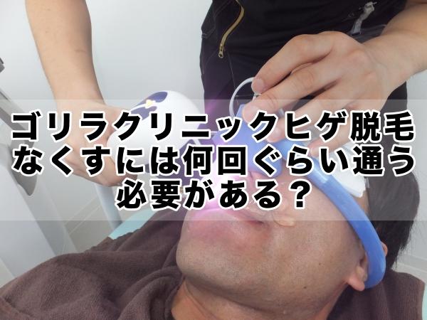 ゴリラクリニックヒゲ脱毛,なくすには何回ぐらい通う必要がある?