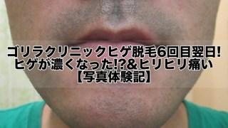 ゴリラクリニックヒゲ脱毛6回目翌日!ヒゲが濃くなった!?&ヒリヒリ痛い【写真】