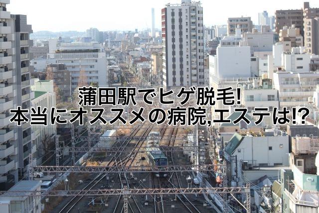 蒲田駅でヒゲ脱毛!本当にオススメの病院,クリニック,エステは!?