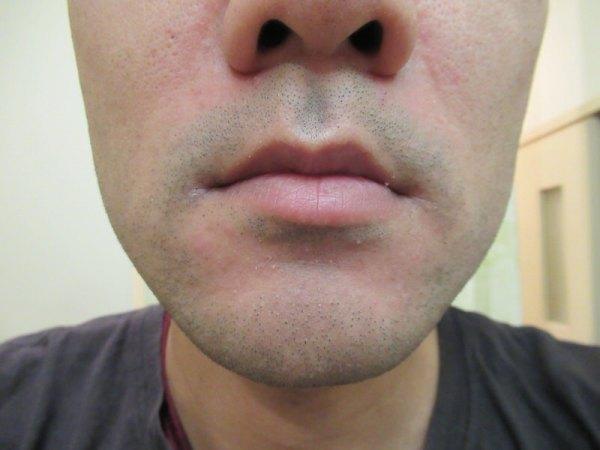 モバイルシェーバーブラウンm-90で剃る前の鼻下・顎先のヒゲ