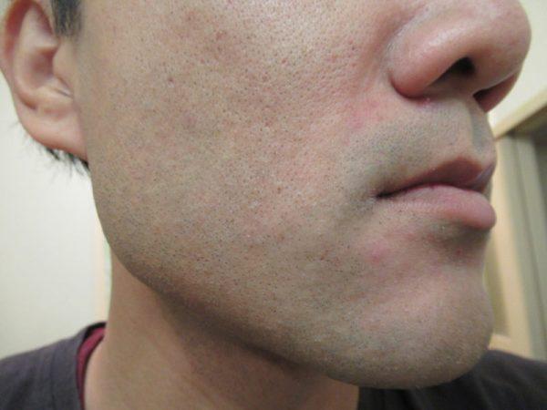 モバイルシェーバーブラウンm-90でヒゲを剃った後のホホ