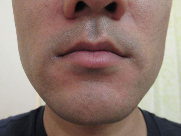 ゴリラクリニック8回目のヒゲ脱毛直後の肌