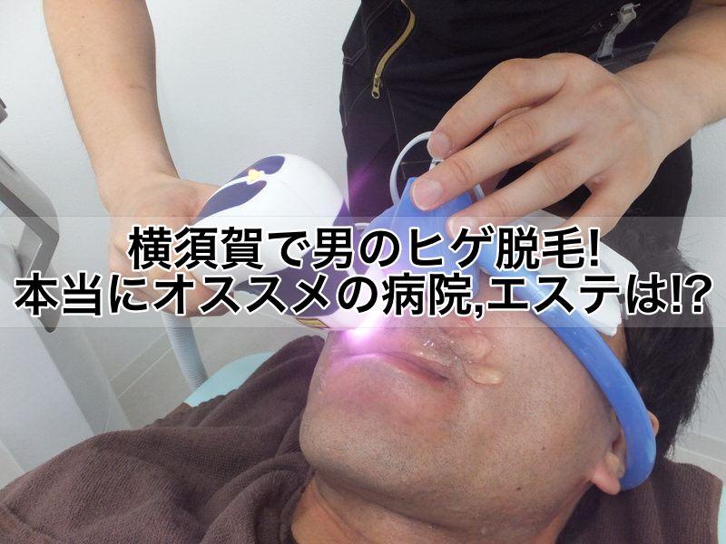 横須賀で男のヒゲ脱毛!本当にオススメの病院,クリニック,エステは!?