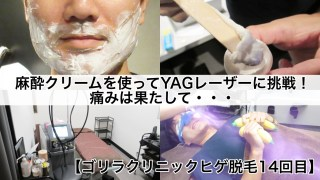 ゴリラクリニックヒゲ脱毛14回目・麻酔クリーム×ヤグレーザー体験記