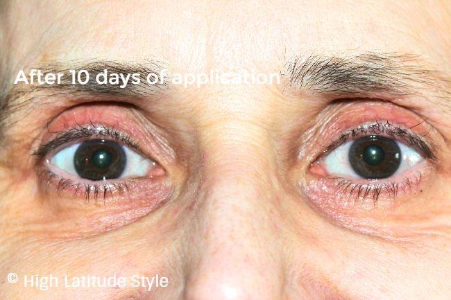 #beautyafter50 eye area after applying ZENMED essential eye serum for 10 days