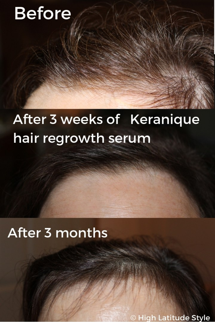 #Keranique It really works!