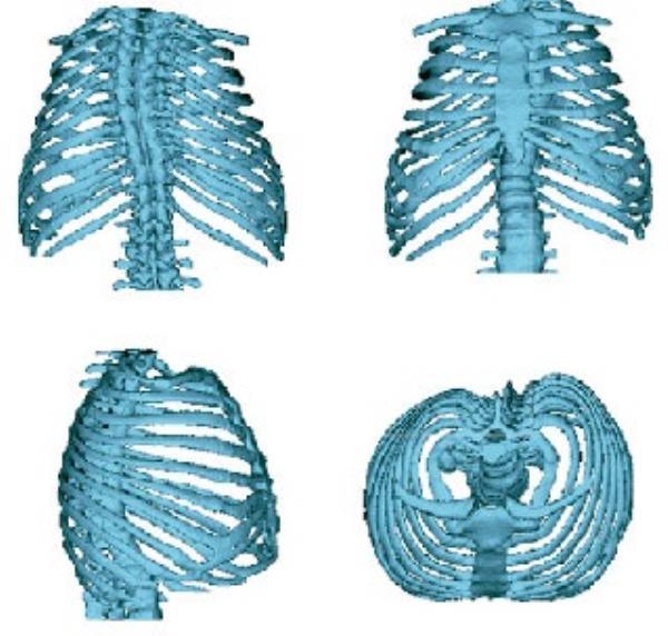 Las costillas marcan la función pulmonar en pacientes de huesos de cristal