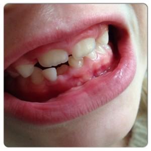 ribbeltjes op tanden