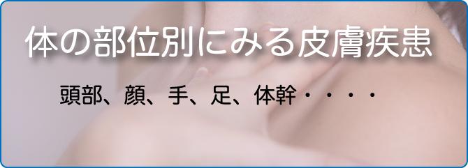 皮膚疾患 体の場所毎の分類