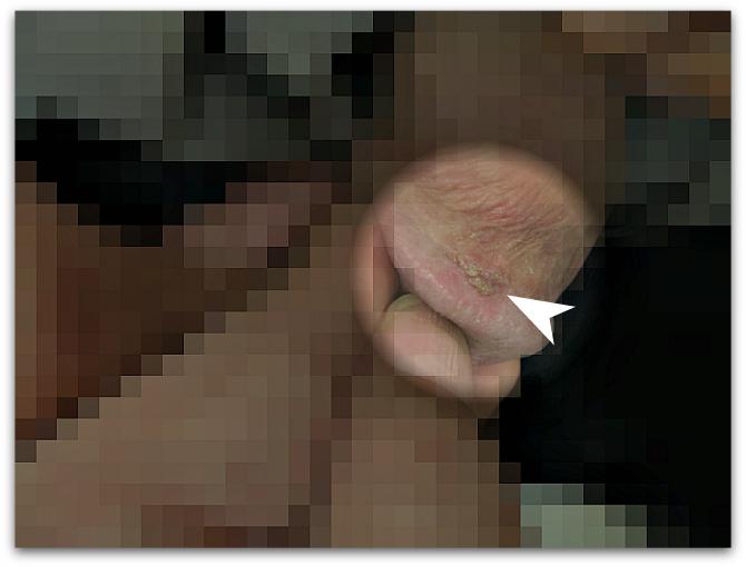 亀頭部にできた尖圭コンジローマ