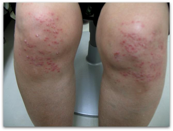 湿疹の一例