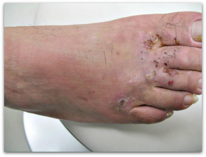 蜂窩織炎の症状