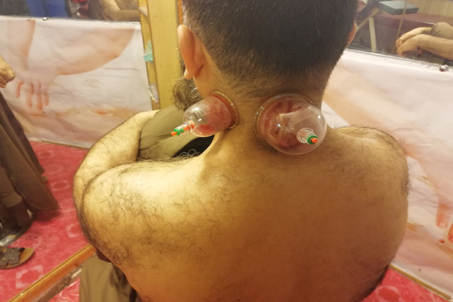 Wet Cupping Applied