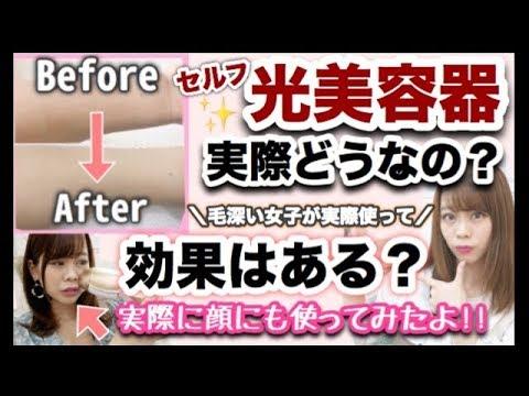 【自宅で簡単✨ムダ毛ケア✨】顔にも使える😭💓毛深い女子が自宅で光美容器を1ヶ月間使ってみた結果・・・。【効果は?使った感想は?】