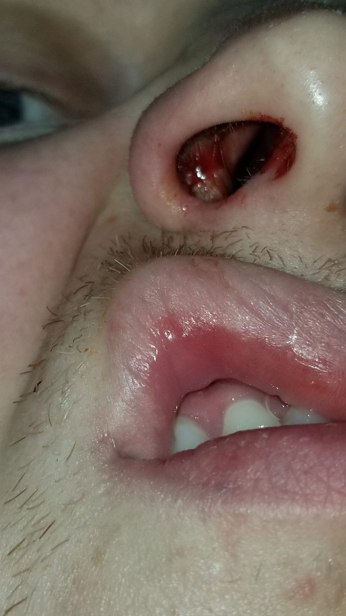 Post septoplasty inside nose