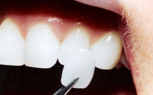 pic-laminate-veneers
