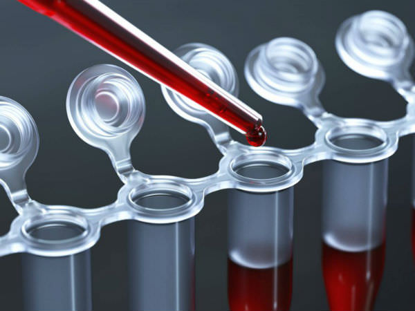 9 показатели на кръвта, които ще разкажат всичко за вашето здраве