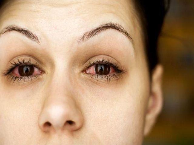 आंखों का संक्रमण
