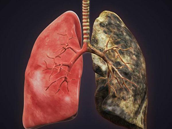डॉक्टरों के मुताबिक लंग कैंसर दो प्रकार के होते हैं