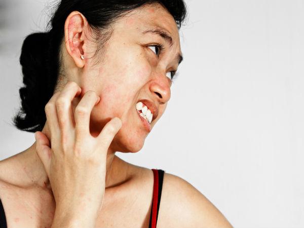 चेहरे पर सूजन की समस्या
