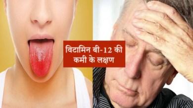 विटामिन बी12 कमी से होती हैं ये गंभीर बीमारियां, शरीर में दिखें ये बदलाव तो हो जाएं सावधान, जानें बचने का तरीका