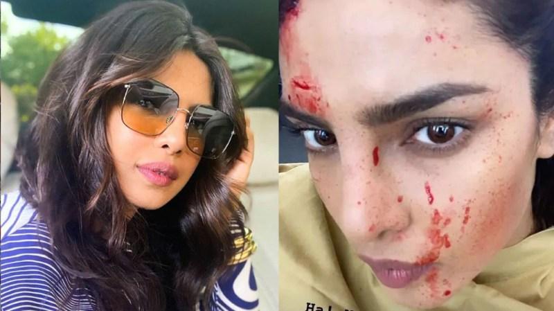 Blood splattered on Priyanka Chopra's face, fans upset after seeing the photo