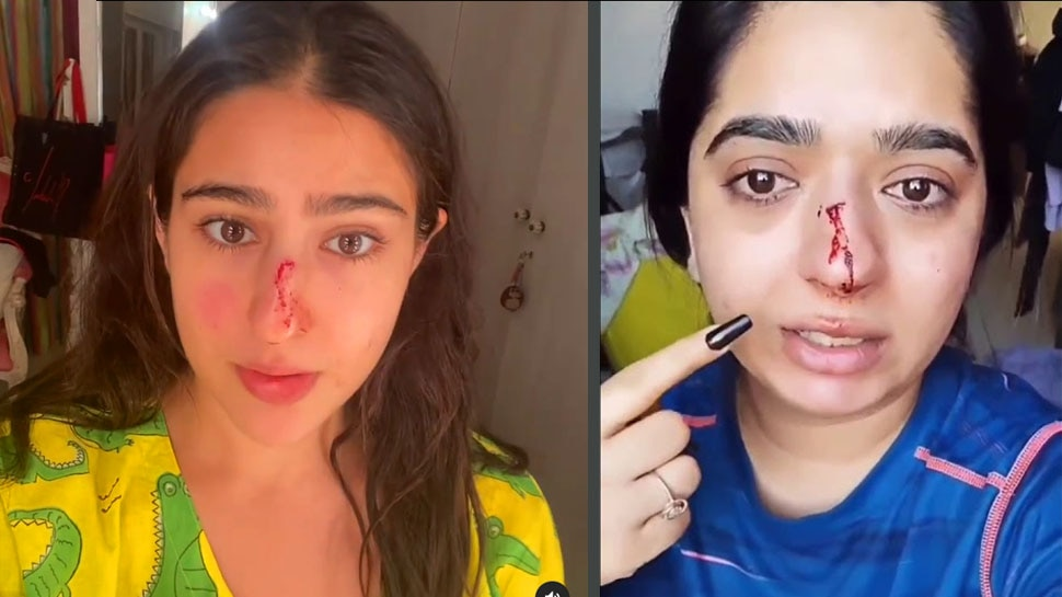 SARA ALI KHAN BLEEDING FROM NOSE GOT INJURED BADLY BUT KNOW WHAT IS THE SITUATION HERE |  VIDEO: Sara Ali Khan's nose bleeds like 'ZOMATO girl', but this time it's different