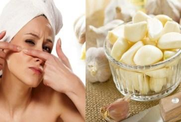 Skin Care tips: घर बैठे लहसुन की मदद से चेहरे को बनाएं खूबसूरत, दाग-धब्बों की कर देता है छुट्टी