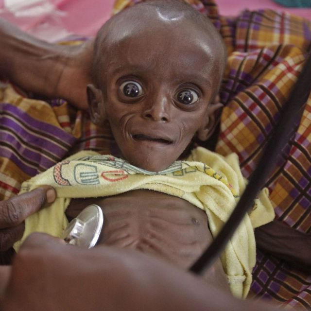 a-7-month-old-is-held-by-his-mother-at-a-rescue-center-in-kenya