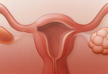 महिलाओं का पीसीओएस की समस्या को अनदेखा करना ख़तरनाक है