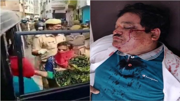 मुरादाबाद मेडिकल टीम पर हमला