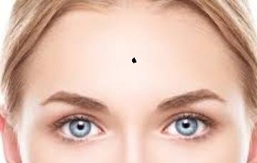 forehead mole prediction