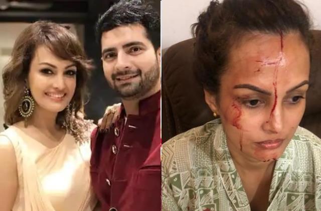 निशा रावल ने दिखाया चोट कहा, 'मारा-पीटा फिर फोड़ा मेरा सिर' पति करण ने कहा, 'खुद को मारकर मुझे....