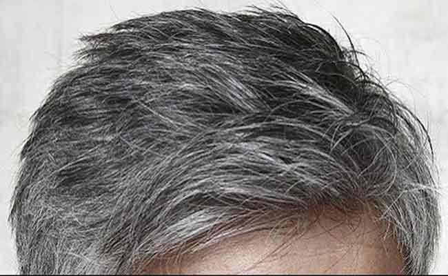 इन कारणों से कम उम्र के बच्चों में तेजी से सफ़ेद हो रहें है बाल, इन चीजों को खाकर रोक सकते है बालों को सफ़ेद होने से