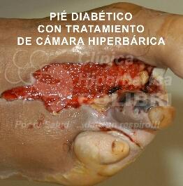 Heridas en tratamiento con camara hiperbarica