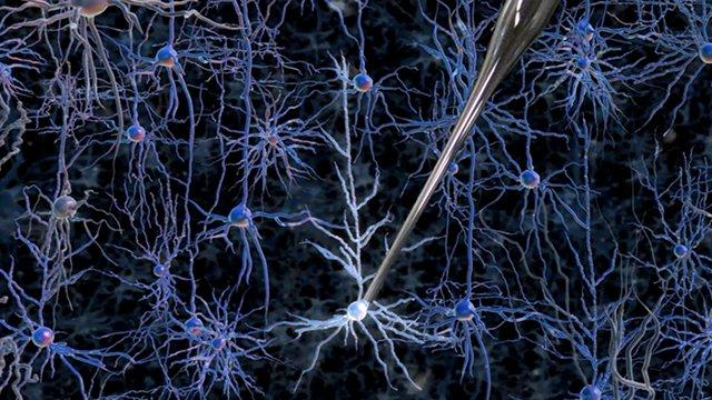 Escaneo de neuronas