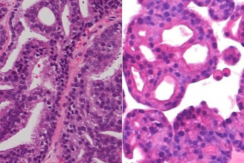 Diapositivas de tumor de un paciente (derecha) y de un mini órgano hecho del tumor (izquierda).