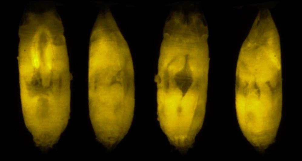 imágenes de diagnóstico en 3D