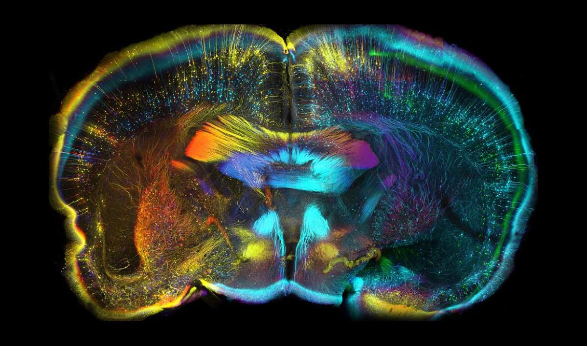 cerebro de un ratón