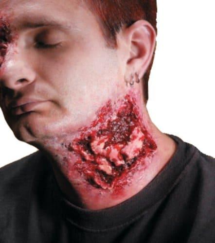 Chomped Bite Wound Kit
