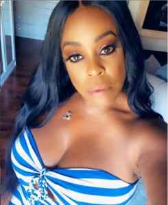 niecy Hip Hop More 245x300 - Niecy Nash flaunts her messed up leg