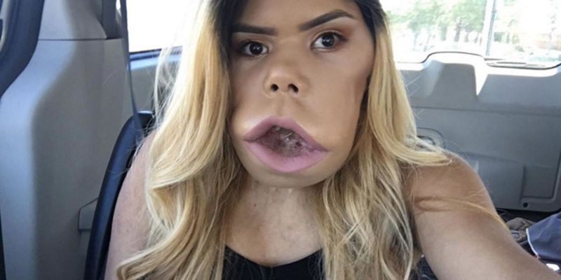 This Beauty Vlogger With Cystic Hygroma