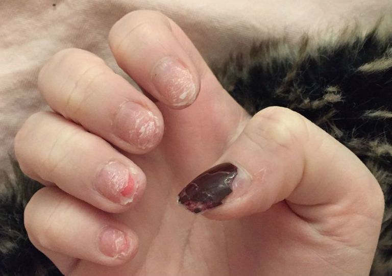 This girl has shared the reality of an acrylic nail addiction