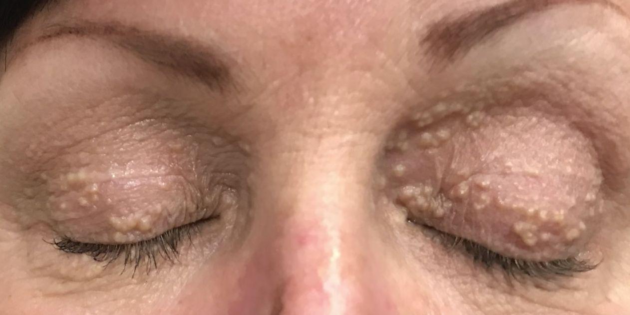 Eyelid Stye Causes What Lower