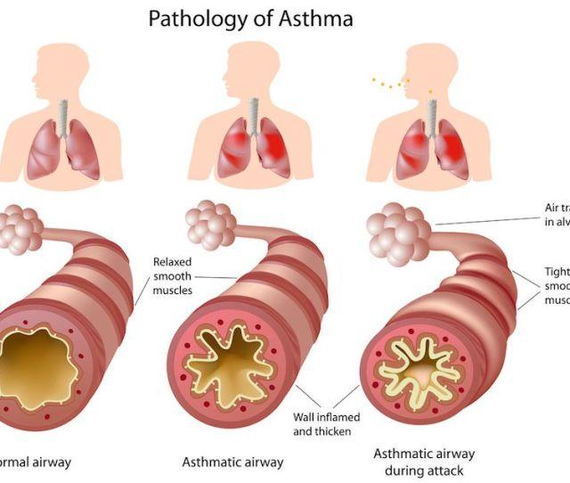 Acid Reflux Symptom Asthma