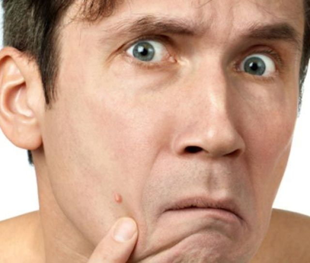 Man Looking At Zit On His Face
